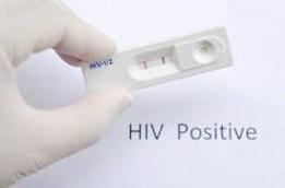 HIV STD Test showing positive result