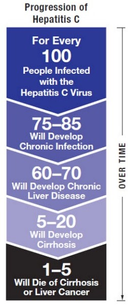 Hepatitis C Disease Progression