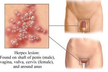 Herpes lesions in pubic region