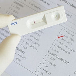 Online Hepatitis C STD test