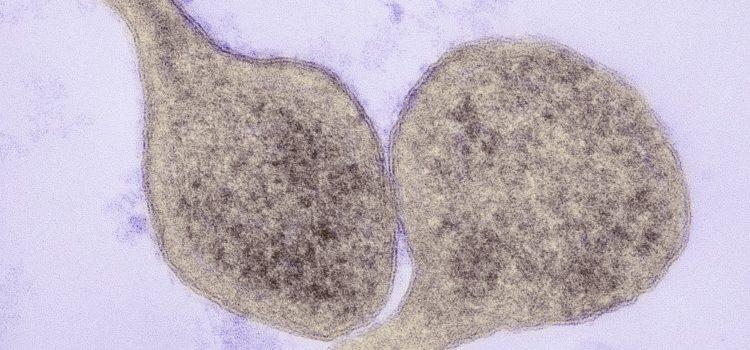Mycoplasma genitalium: Signs & Symptoms of this Little Known STD