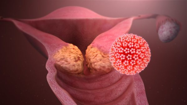 Cervical Cancer caused by HPV