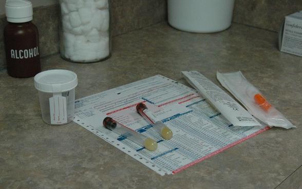 urine sample urine STD test